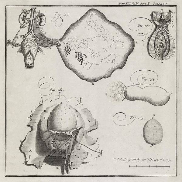 Tissue Paper Photograph - Medical Illustrations, 18th Century by Middle Temple Library