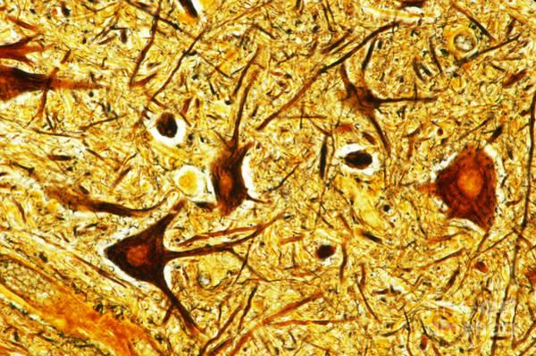 Photograph - Nerve Tissue by MI Walker