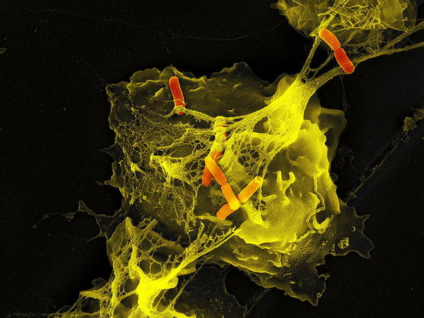 Trapping Photograph - Neutrophil Cell Trapping Bacteria, Sem by