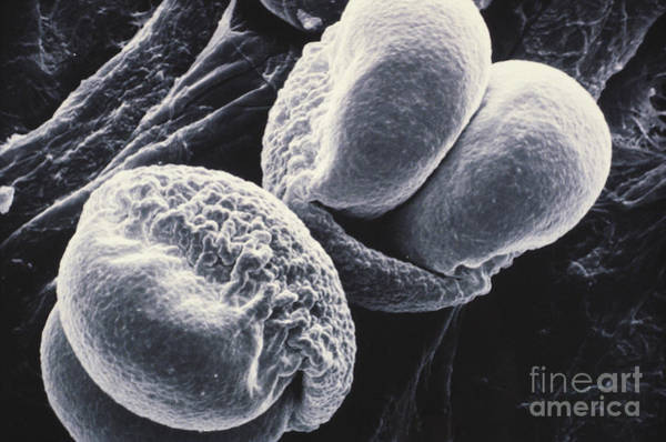 Photograph - Pine Pollen Sem by Omikron