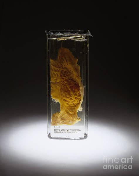 Photograph - Stomach, Hemorrhagic Gastritis, Arsenic by Science Source
