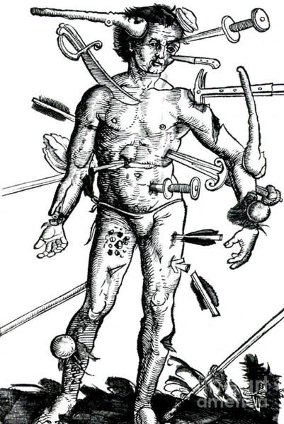 Photograph - Wound Man 1517 by Science Source