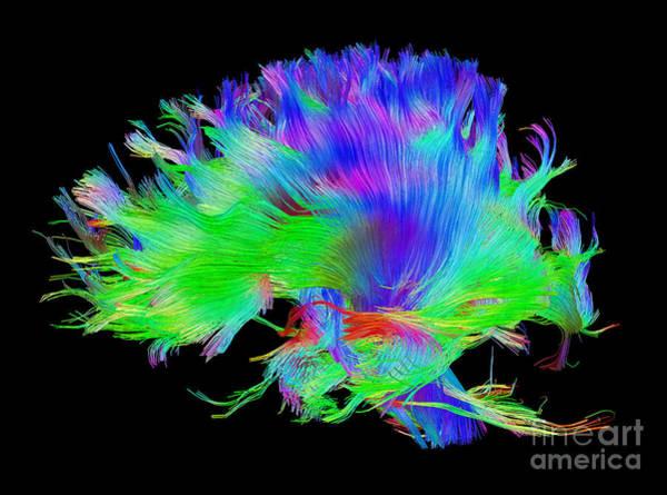 Photograph - Fiber Tracts Of The Brain, Dti by Living Art Enterprises