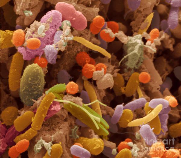 Wall Art - Photograph - Human Feces Containing Bacteria by Scimat