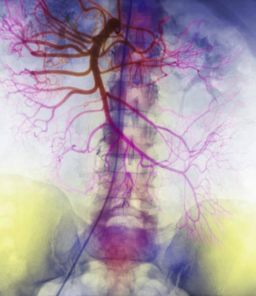 X-ray Of Arteries Art Print
