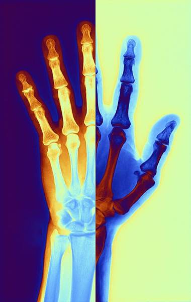 Vertical Digital Art - Arthritic Hand, X-ray by Pasieka