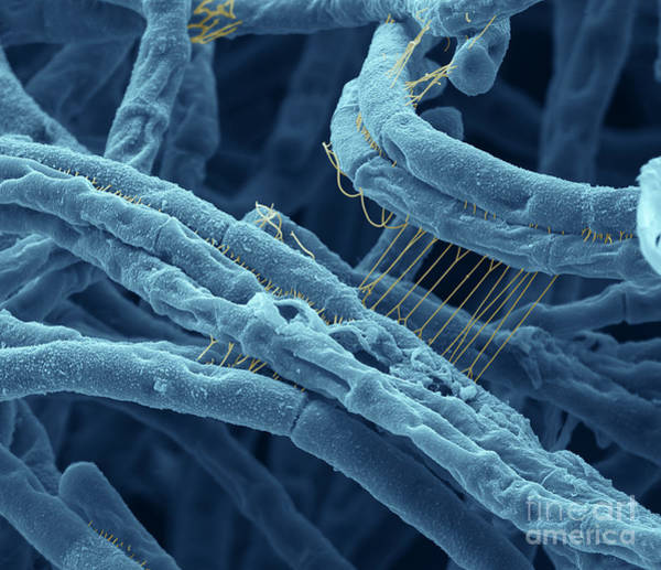 Scanning Electron Micrograph Wall Art - Photograph - Anthrax Bacteria Sem by Eye Of Science and Photo Researchers
