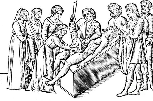 Photograph - Cesarean Section 16th Century by Science Source