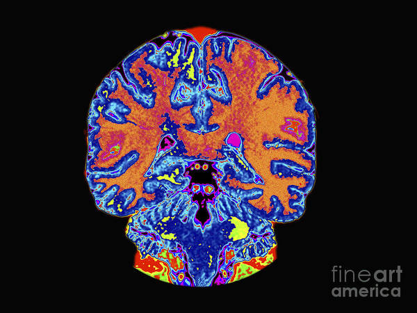 Resonance Wall Art - Photograph - Coronal View Mri Of Normal Brain by Medical Body Scans