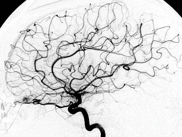 Cerebral Angiogram Photograph - Dural Arterial Venous Fistula, Angiogram by Living Art Enterprises
