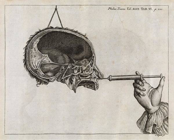 1755 Photograph - Eustachian Tube Syringing, 18th Century by Middle Temple Library