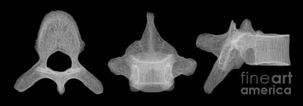 Photograph - Human Vertebra T5, X-ray by Ted Kinsman