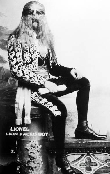 Photograph - Lion-faced Man, 1907 by Granger