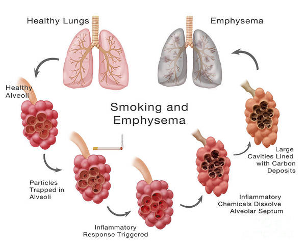 Wall Art - Photograph - Lung Damage Leading To Emphysema by Monica Schroeder