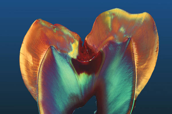 Oral Wall Art - Photograph - Polarised Lm Of A Molar Tooth Showing Decay by Volker Steger