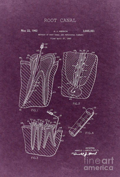 Wall Art - Drawing - Root Canal Dental Treatment Patent 1960 4 by Nishanth Gopinathan