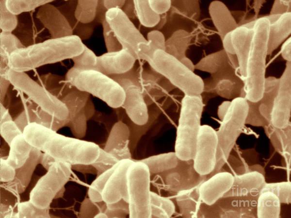 Wall Art - Photograph - Salmonella Enteritidis Bacteria, Sem by Scimat