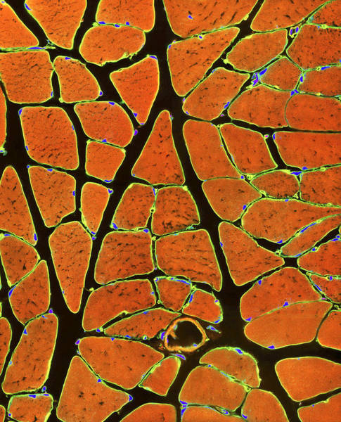 Voluntary Muscle Photograph - Skeletal Muscle Fibres, Light Micrograph by Thomas Deerinck, Ncmir