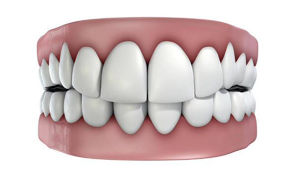 Freshness Digital Art - Teeth Set Isolated by Allan Swart
