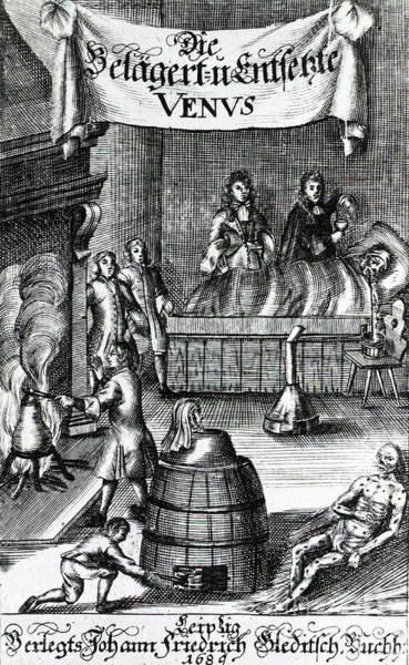 Sauna Wall Art - Photograph - Treatments For Syphilis, 17th Century by Science Source