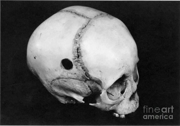 Photograph - Trepanning: Skull by Granger