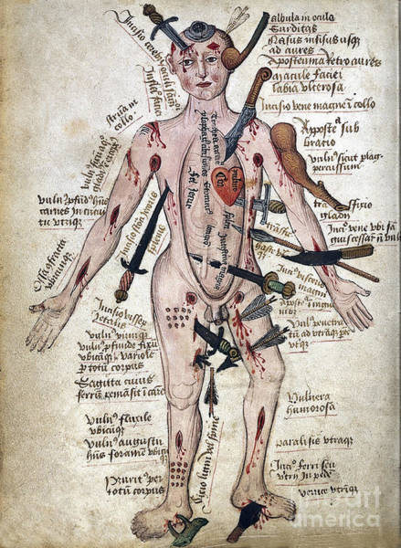 Wall Art - Photograph - Wound Man, 15th Century by Wellcome Images