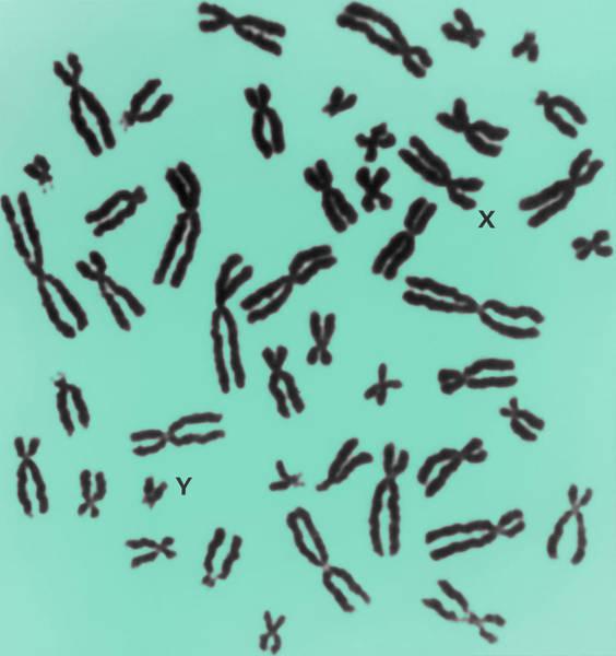 Wall Art - Photograph - Human Chromosomes by Biophoto Associates