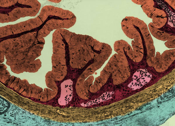Wall Art - Photograph - Mucosa From Contracted Gall Bladder, Lm by Don Fawcett