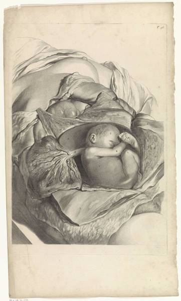 Liver Painting - Anatomical Study Of The Inside Of The Womb And A Fetus, Pieter Van Gunst, After Gerard De Lairesse,  by Gerard de Lairesse