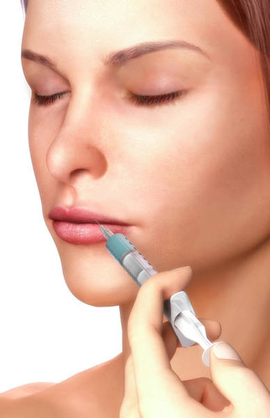 Digital Art - Botox Injection by Medicalrf.com