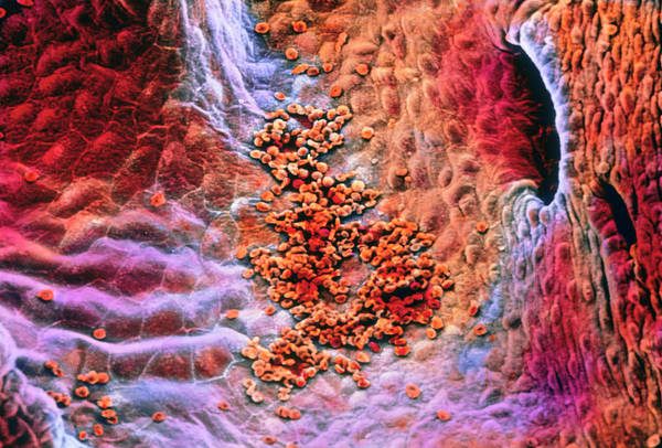 Hematology Wall Art - Photograph - False-colour Sem Early Clot Formation by Prof. P. Motta/dept. Of Anatomy/university 'la Sapienza', Rome