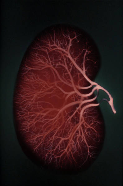 Wall Art - Photograph - Human Kidney by Biophoto Associates