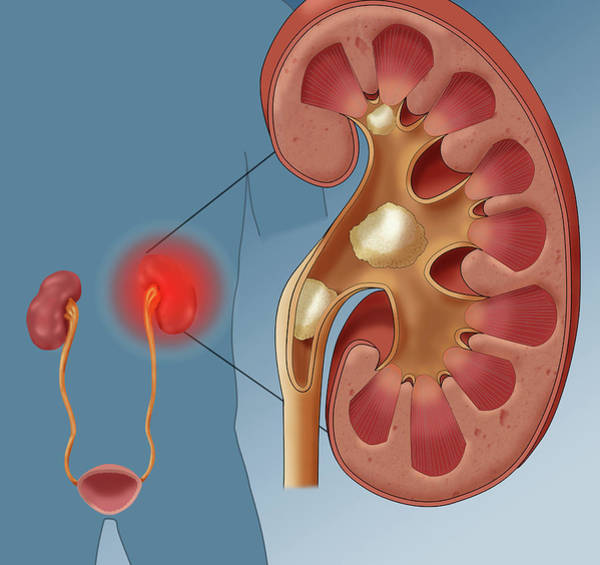 Wall Art - Photograph - Kidney Stone Pain, Illustration by Monica Schroeder