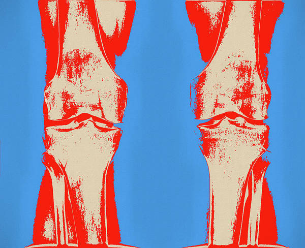 Painting - Knees Pop Art by Dan Sproul
