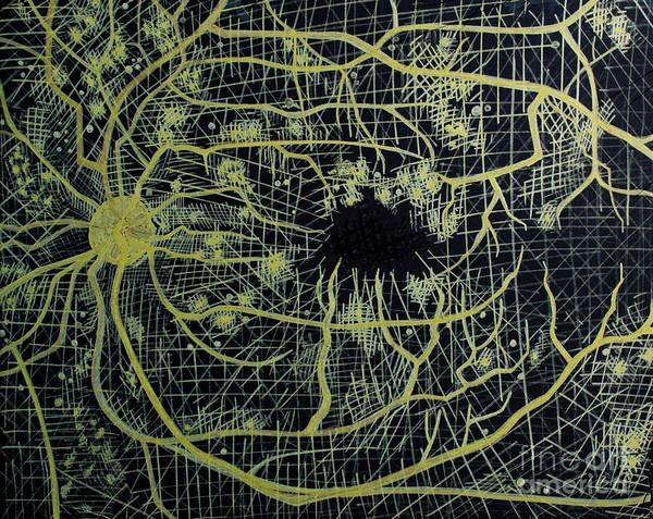 Nerves Drawing - Microaneurysms Flourescein Angiography  by Feyene Art
