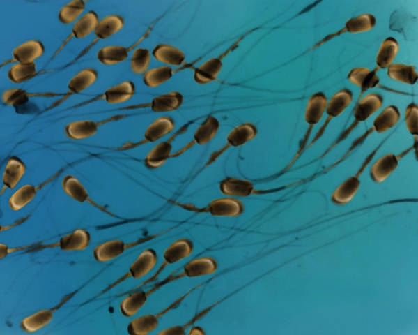 Wall Art - Photograph - Sperm, Lm by Don Fawcett
