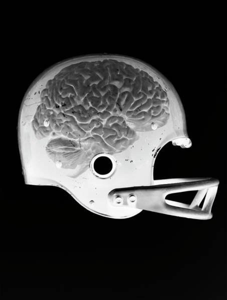 Football Helmet Photograph - X-ray Image Of A Brain In A Football by Chris Parsons