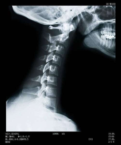 Vertebra Photograph - X Ray Of Neck Vertebrae by Anthony Bradshaw