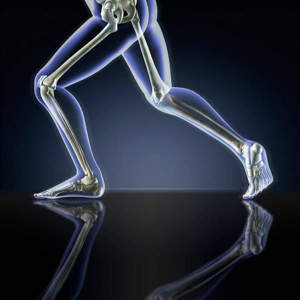 Photograph - X-ray Of Running Leg Bones by Stocktrek