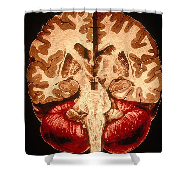Brain, Coronal Section Shower Curtain