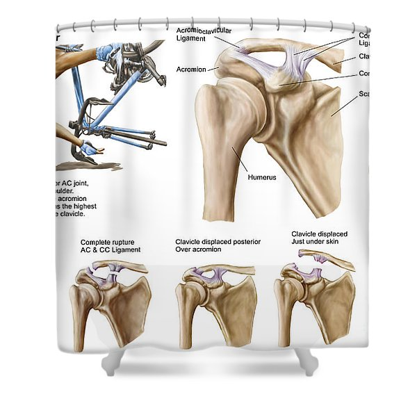 Anatomy Of Acromioclavicular Joint Shower Curtain