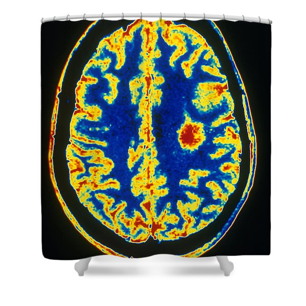 Glioma Shower Curtain