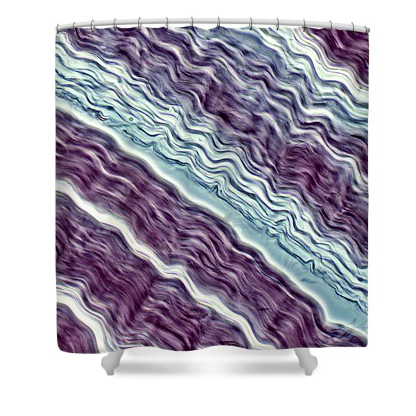 Lm Of A Tendon Shower Curtain
