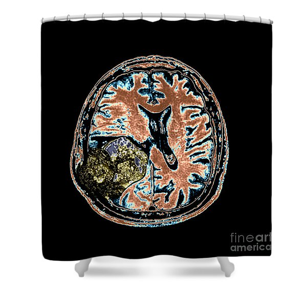 Mr Of Malignant Brain Tumor 2 Of 3 Shower Curtain