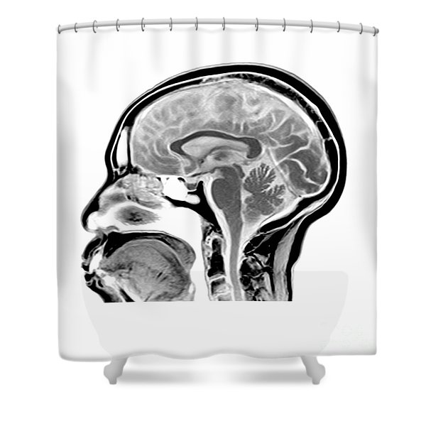 Sagittal Mri Of The Brain Shower Curtain