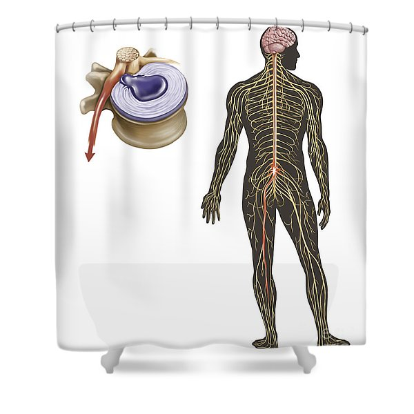 Sciatica Caused From Herniated Disc Shower Curtain