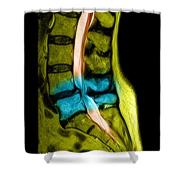 Spondylolisthesis And Canal Stenosis Shower Curtain