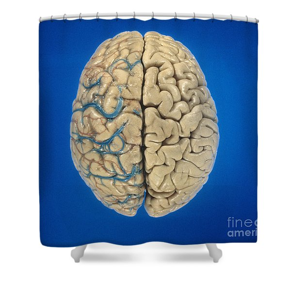 Superior View Of Brain Shower Curtain