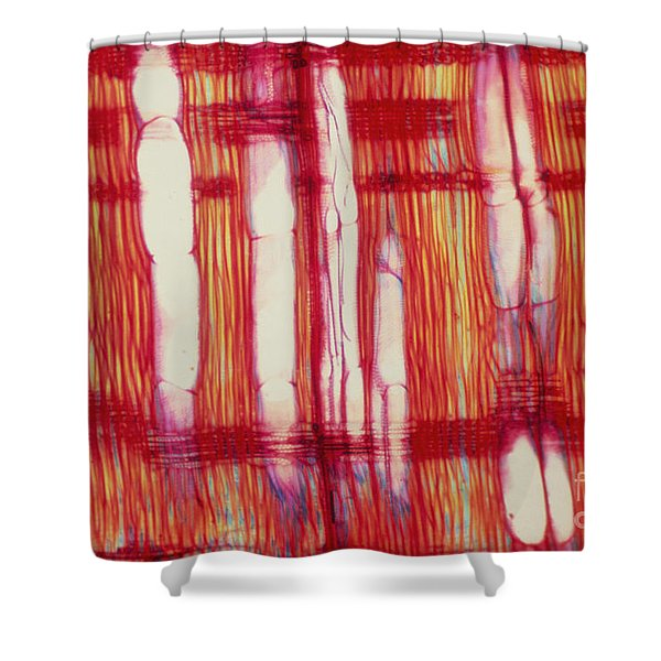 Vascular Rays And Vessel Elements Shower Curtain