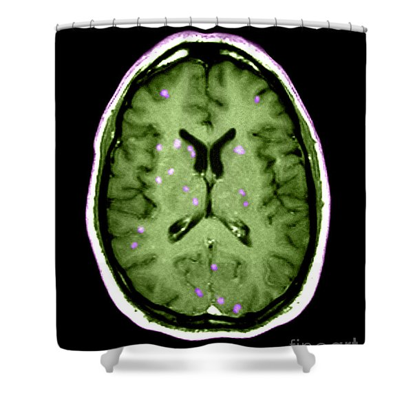 Abnormal Mri Of Brain Shower Curtain